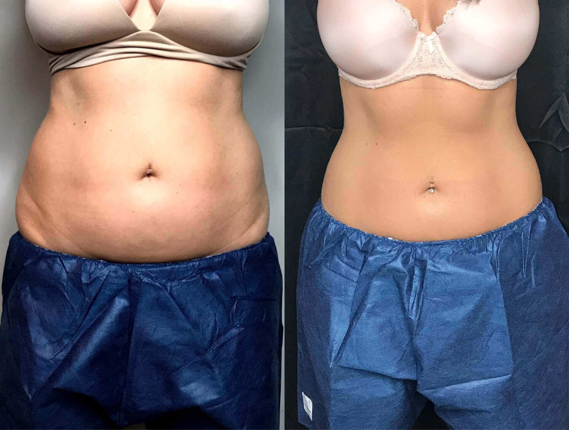 CoolSculpting Before and After   Real Patient Results