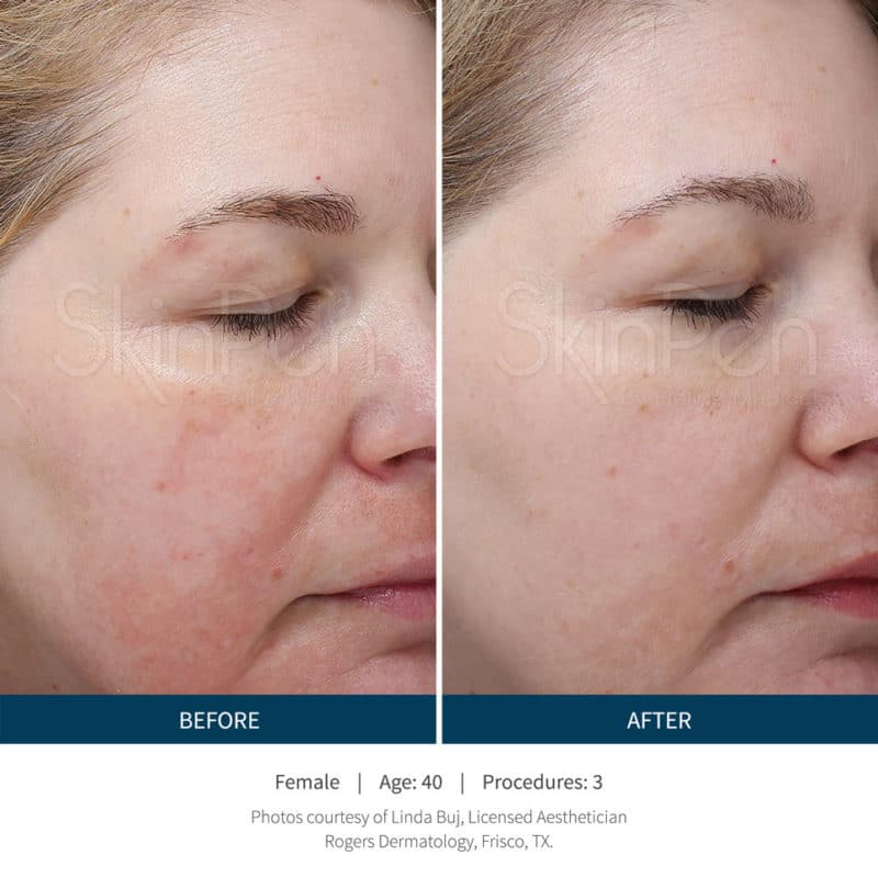 microneedling_skinpen_before_and_after_3