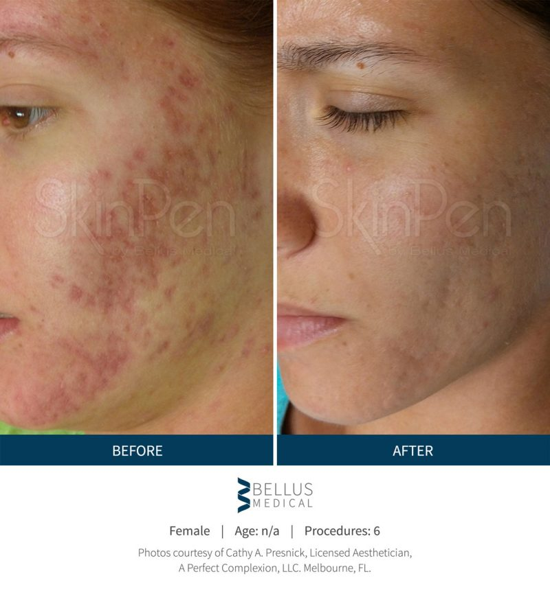 Microneedling Skinpen before and after at the Medspa West Hartford