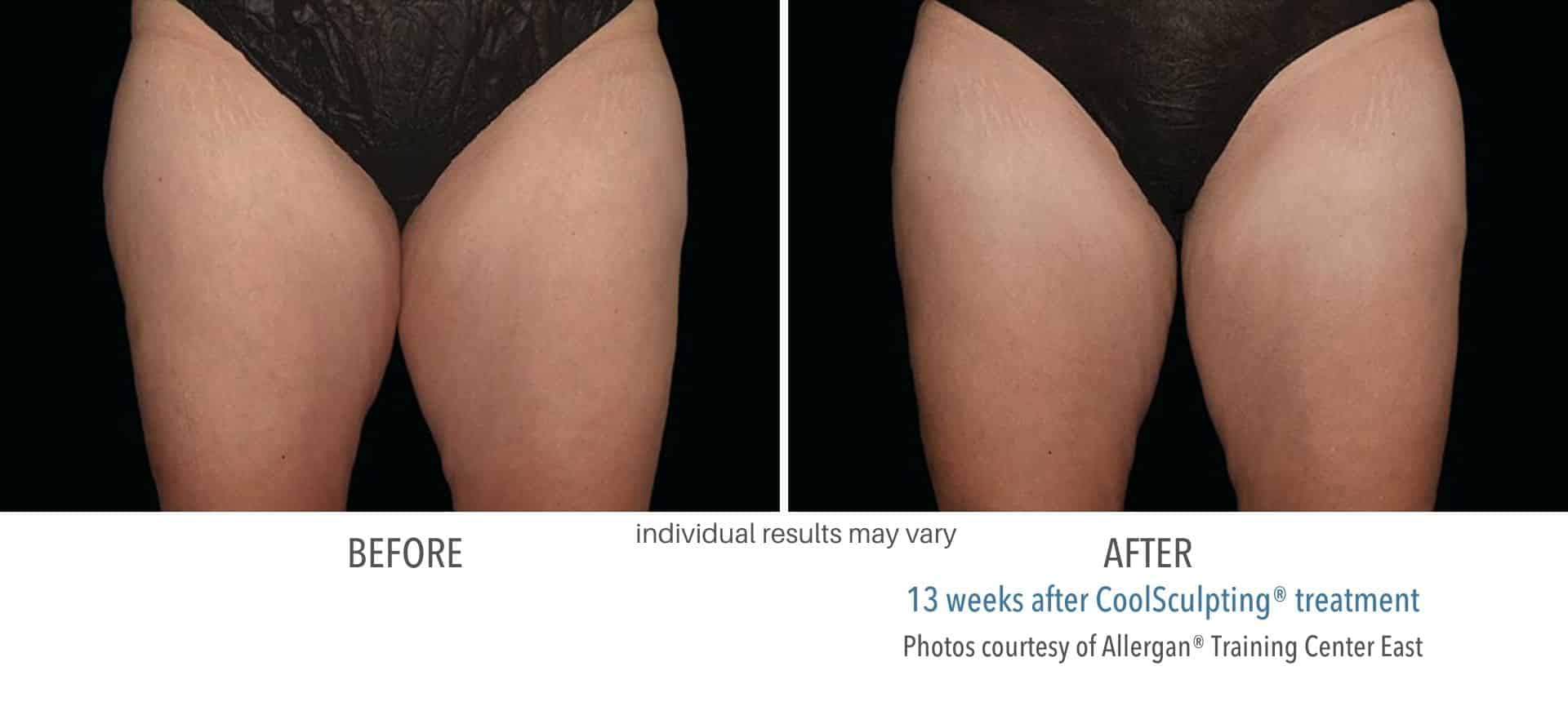 coolsculpting treatment for thighs in West Hartford