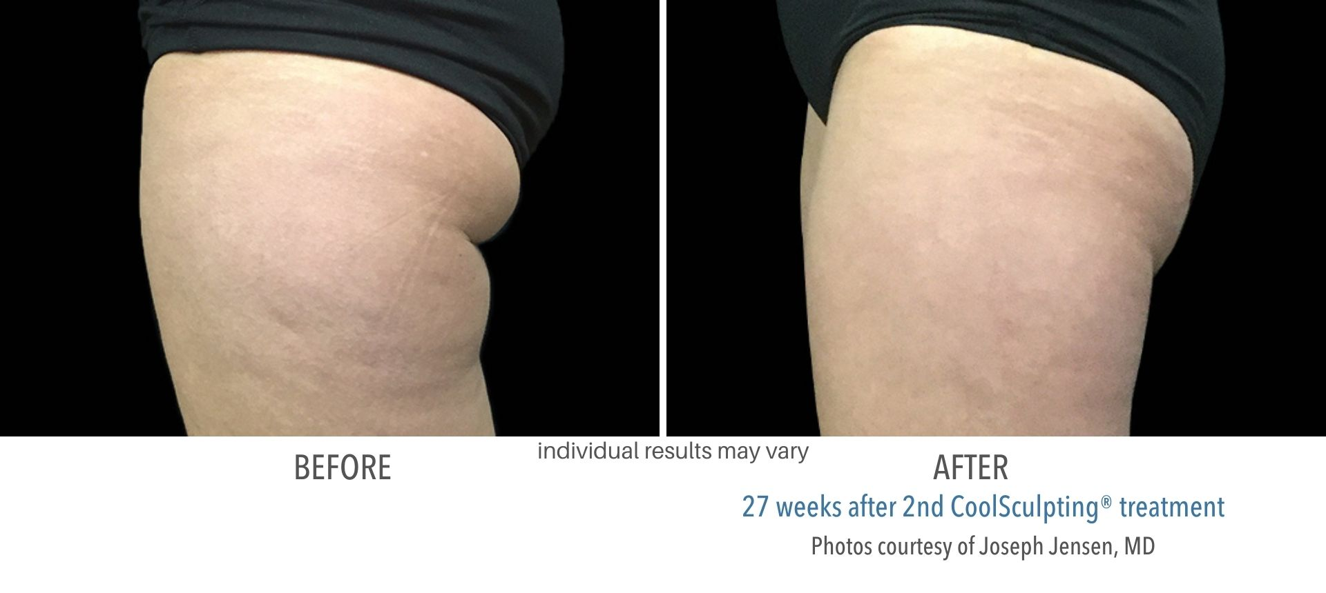 coolsculpting for thighs at the Medspa MD in West Hartford