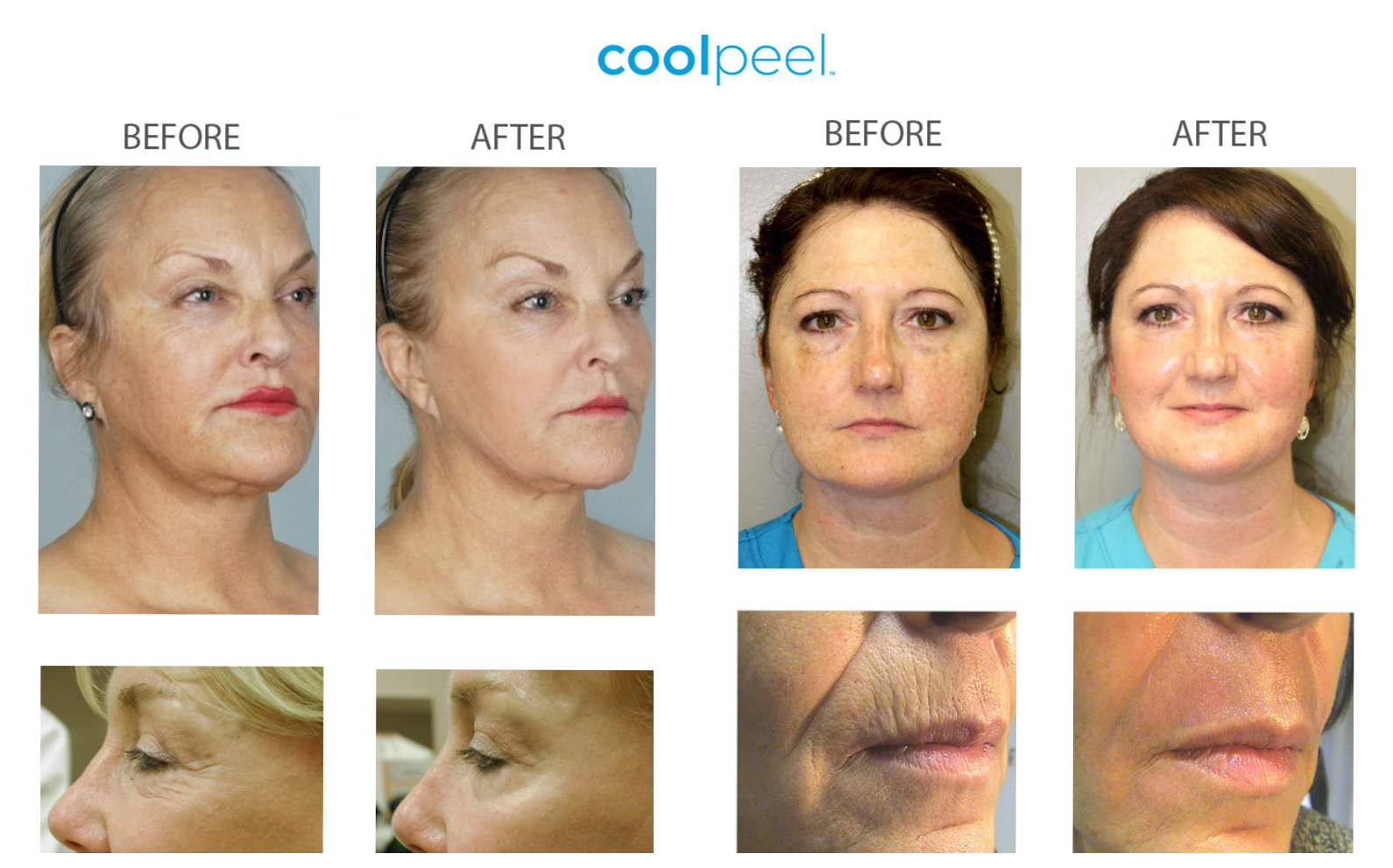 Before and after CoolPeel.